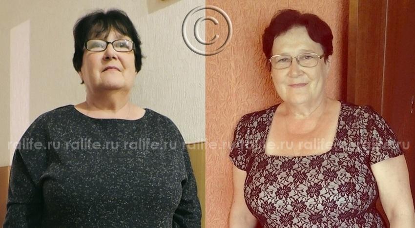 мои фото до и после